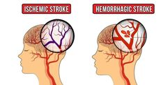 One Month Before a Stroke, your body sends you these Warning signs - DON'T IGNORE THEM Disclaimer: The materials and the information contained on the Zeyana . Migraine Aura, Transient Ischemic Attack, Types Of Strokes, Loss Of Balance, Severe Headache, Atrial Fibrillation, One Month, Medical Help