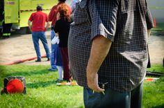 Global Obesity Estimates may Miss More than Half a Billion Worldwide