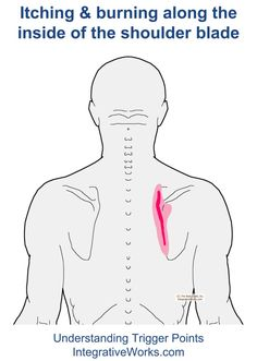 Understanding Trigger Points - Itching and burning along the shoulder blade