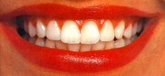 Você sabe o que são lentes de contato para os dentes