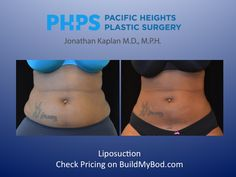 If you're considering liposuction for weight loss, think again. If you remove too much fat during a liposuction procedures, it can actually be unsafe. Tummy Tuck Before After, Boody Workout, Bbl Surgery, Liposuction Procedure, Lymphatic Drainage Massage, Mommy Makeover, After Workout, Detox Your Body