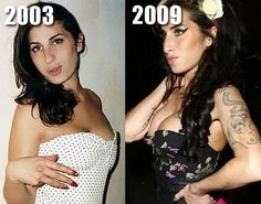 If you remember back in the day, Amy Winehouse started to get a lot of plastic surgery toward 2009. Before and after photos show she had breast implants, Botox and even lip injections.
