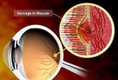 Find out what may put you at risk for age-related macular degeneration (AMD) including genes smoking high blood pressure and more. Prevent Arthritis, Arthritis Symptoms, Glaucoma Symptoms, Fibromyalgia, Macular Degeneration Causes, Eye Anatomy, The Retina, Eye Sight Improvement, Hair
