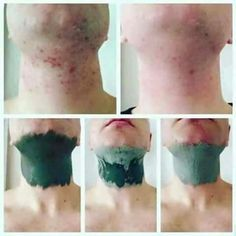 Glacial Marine Mud Mask *Great for blackheads and pores * Helps clear acne and spots *For both men and women Leaving skin, Smooth. Homemade Acne Treatment, Oily Skin Treatment, Scar Treatment, Skin Treatments, Epoch Mud Mask, Marine Mud Mask, Glacial Marine Mud, Acne Scars, Skin Care Regimen