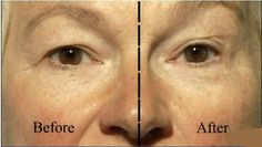 Anti-Aging Skin Effects!
