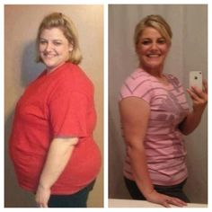 PCOS, before & after