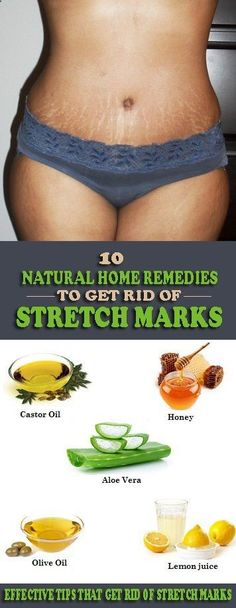 10 Natural Home Remedies to Get Rid of Stretch Marks Fast – Info Health Tips Stretch Mark Remedies, Stretch Mark Removal, Stretch Marks, Health Tips For Women, Health Advice, Health And Beauty, Health Care, Beauty Skin, Natural Skin