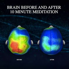 The incredible affects meditation has on our brains. What are you waiting for? Take the next 10 minutes to meditate!