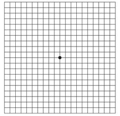 Amsler Grid  This is how to discovered I had a serious problem with my right eye. The straight lines on here looked wavy when I covered my left eye. Found out the next day I had a retinal detachment with the macula detached. Had scleral buckle surgery to repair 2 days later.