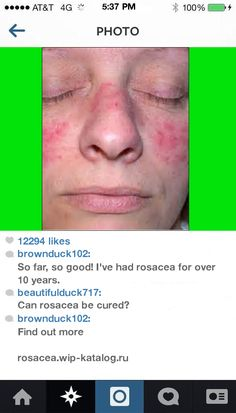Skin Rosacea Treatment 095332 - Rosacea. You have nothing to lose! Visit Site Now.