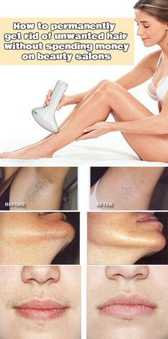 How to permanently get rid of unwanted hair without spending money on beauty salons