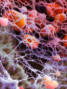 Human Blood Cells and Fibrin Network › Micronaut: The fine art of microscopy by science photographer Martin Oeggerli ///-----Célula eucariota (vegetal) ---/// Science Art, Science And Nature, Science Images, Scanning Electron Microscope, Microscopic Photography, Micro Photography, Microscopic Images, Macro And Micro, E Mc2