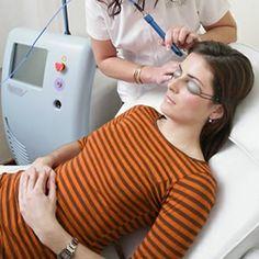Acne Vulgaris Treatment