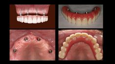 Cost effective dental and #hair #restoration #surgery