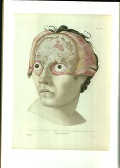 Syphilis (RC) Syphilis affects the skull deteriorating the skull.