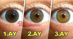 Ahududu ve gül yaprağı ile katarakt tedavisi, göz sağlığı, görme problemi, katarakt tedavisi, Ahududu neye iyi gelir, gül yaprağı neye iyi gelir