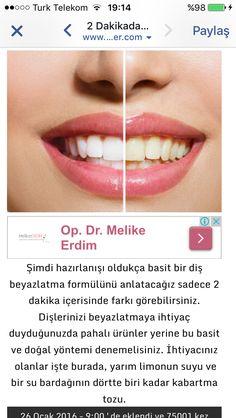 Diş beyazlatma 1
