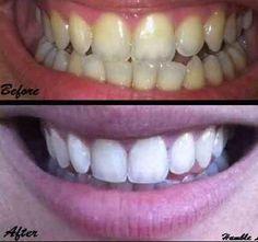 Ezek a szerek jobban még a szódabikarbónánál is jobban fehérítik a fogat! - Blikk Rúzs Teeth Whitening Remedies, Charcoal Teeth Whitening, Natural Teeth Whitening, Beauty And Health Routine, Cooking With Turmeric, Tooth Sensitivity, Coconut Oil Pulling, Healthy Teeth, Activated Charcoal