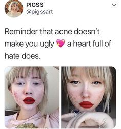 fierceawakening: moranion: fierceawakening: misanthropymademe: fierceawakening: rainbowloliofjustice: iwilleatyourenglish: miss-andrie: Im sure Id feel the same way if I was a skinny white girl with blue eyes and blonde hair this girl posted a picture featuring her cystic acne uncovered something thats extremely stigmatized in order to make a statement and spread positivity. thats it. thats all she did. she didnt say she was the face of people with acne or act like she has it ha