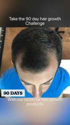 Biotin Hair Growth, Challenges, Day