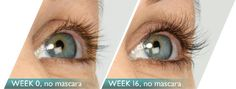 http://www.renovationmedicalspa.com/spa-products/ Shannon's eye lashes LATISSE® solution is a once-a-day treatment you apply yourself each evening to the base of the upper eyelashes. You should always only use the FDA-approved sterile applicators to apply LATISSE® directly to the base of your upper eyelashes. The applicators have been specially designed and manufactured to meet FDA standards.