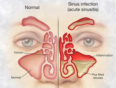 How To Relieve Your Sinus Infection In Under 30 Seconds