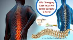 Kasturi Multi Speciality Hospitals #Secunderabad is a specialized center for all types of #SpineSurgeries. Through Endoscopic spine surgery you can get back to normal life easily very soon. Click http://kasturihospitals.com/orthopaedics/spinal-surgery/endoscopic-spine-surgery/. #EndoscopicSpineSurgery