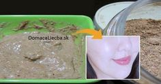 In this article you will read how to get clean and clear skin at home easily. This face pack you will help you to get rid of wrinkles, age spots, pigmentation, Natural Skin Whitening, Natural Skin Care, Natural Health, Pigmentation, Toner For Face, Homemade Face Masks, Eyes, Home Remedies, Skin Care