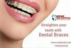 MS Dental Implant Dentistry, Cosmetic Dentistry, Teeth Implants, Dental Implants, Dental Braces, Dental Care, Oral Maxillofacial, Kovalam, Dental Hospital