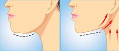 Double Chin Exercises Learn How To Lose Double Chin And Neck Fat. Double Chin Exercises, Neck Exercises, Facial Exercises, Reduce Face Fat, Reduce Belly Fat, Lose Belly Fat, Loose Weight, Reduce Weight, Yoga Facial