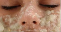 Wipe Off The Dark Spots On Your Face After Only Second Use! - http://nifyhealth.com/wipe-off-the-dark-spots-on-your-face-after-only-second-use/