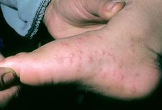 Photo of Hand-Foot-and-Mouth Disease (Coxsackie)