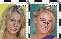 Blake Lively Nose Job Photo looks young and appears to be 20 years off of current age. It is the plastic surgery that keeps Blake Lively Nose Job Photo loo. Blake Lively Nose Job Photo good and bad cosmetic surgery before and after pictures photos. Blake Lively Nose, Bulbous Nose, Rhinoplasty Before And After, Celebrity Plastic Surgery, Blake Lively Plastic Surgery, Perfect Nose, Bff, Celebrities Before And After, Nose Surgery