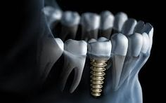 It is necessary to choose the best dentist for your teeth. Cedar Park gives lots of good options for dentists who are genuinely interested in the well being of your teeth and mouth.