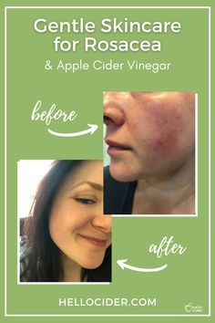 In this post you'll find out how one of our customers is using Hello Cider's Apple Cider Vinegar face toner and wipes to help with rosacea. #skincare #rosacea Natural Toner, All Natural Skin Care, Home Remedies For Skin, Natural Health Remedies, Toner For Face, Skin Toner, Ocular Rosacea, Rosacea Remedies, Simple
