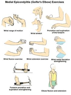Golfer's elbow is a condition that causes pain and inflammation on the inside of your elbow that may spread into the forearm and wrist. Many activities can lead to golfer's elbow including golf, racket sports and weight training where the damage is related to overusing the muscles in the forearm when you grip, rotate your arm and flex your wrist.  Here are some sample exercises that you can try for golfer's elbow once the pain has been reduced.