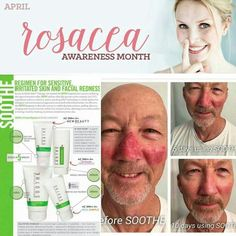 Problem with Rosacea or Eczema?  Try Rodan + Fields' Soothe Regimen!  This regimen is backed by a 60 day guarantee!  I use this on my 3 year old and love how fast this regimen works!