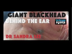 Giant Blackhead, Dilated Pore of Winer, behind the ear extracted Pimples On Chin, Blackheads On Nose, Dilated Pores, Cystic Pimple, Get Rid Of Pores, Anti Itch Cream, At Home Face Mask, Prevent Wrinkles