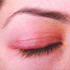 Get Rid of Blepharitis: 7 Natural Remedies for an Inflamed Eyelid by Swollen Eyelids Remedy, Eye Irritation Remedies, Rashes Remedies, Health Remedies, Ocular Rosacea, Dry Eye Treatment, Systemic Inflammation