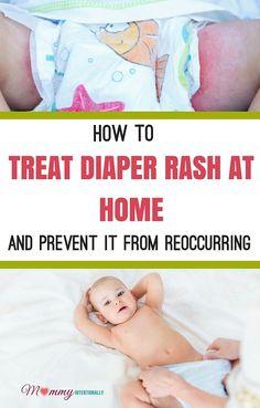 How to Treat Diaper Rash at Home