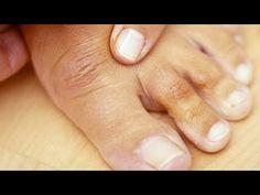Nessun Fungo Sopravvive a Questo Potente Rimedio Casalingo! Ecco Come Pr. Natural Nail Designs, Cute Nail Designs, Home Remedies, Natural Remedies, Healthy Skin, Healthy Life, Health And Wellness, Health Fitness, Natural Nails