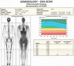 Bad DXA Scan? Osteoporosis? http://amzn.to/1GHFR3t
