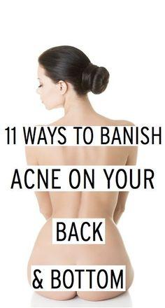 11 ways to banish acne on your back& bottom