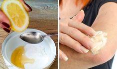 10 Natural Tricks to Remove Dark Knees and Elbows - Medictic Dark Elbows, Oatmeal Scrub, Baking Soda And Lemon, Homemade Scrub, Uneven Skin, Natural Beauty Tips, Aloe Vera Gel, Kraut, Lighten Skin