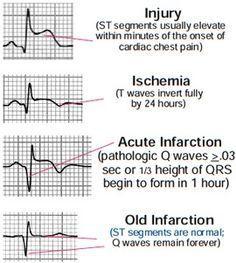EKG injuries