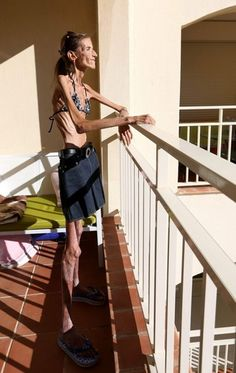 Valeria Levitina- The most anorexic woman in the world - Imgur