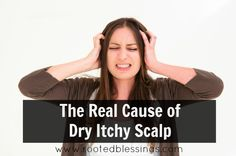 The Real Cause of Dandruff..the same can be said of dry skin, chapped lips and eczema.