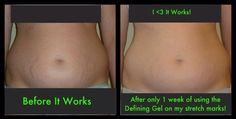 Have stretch marks!?! Try our Defining Gel and reduce their appearance!! It worked it's magic for this girl in Only ONE WEEK!!! It's $ 45 for Loyal Customers- 40% off retail!! You can get yours through me, just follow this link!#tighten #tone #firm #weight #healthy #detox #bikini #summer #body #sexy #cellulite #fat #skinny #weightloss #wedding #beach #love #picoftheday #lifting #lasting #results #fast #wrap #itworks #saggy #shrink #allnatural #slim #loseinches #inchloss