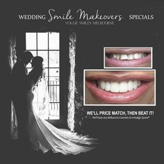Les Miles, Smile Makeover, Melbourne Cbd, Photo P, Cosmetic Dentistry, Teeth Whitening, Type 1, Getting Married, Theater