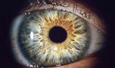 eye pupil macro